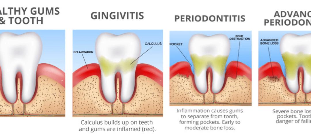 Gum Disease (Periodontal Disease)
